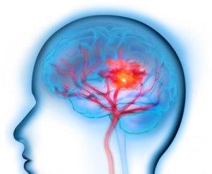 ictus-cerebral