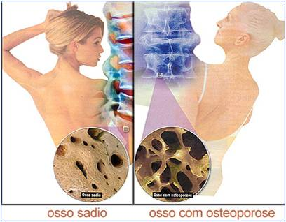 osteo789