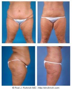 Quemar grasa abdominal hombre photo 3
