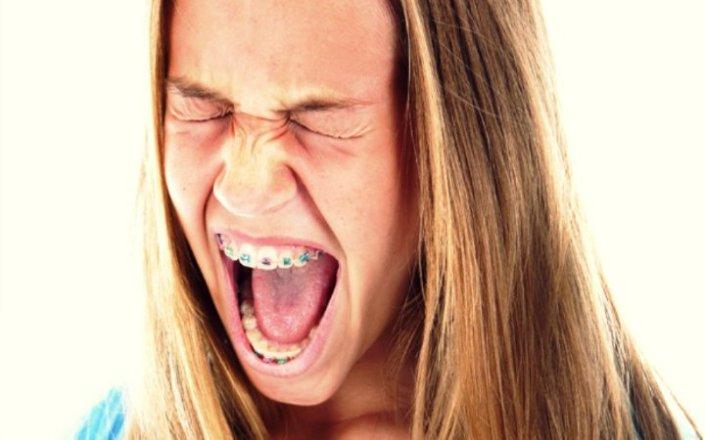 Cuánto_tiempo_duran_los_dolores_y_molestias_causados_por_los_brackets1